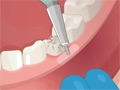 Operate Now: Dental Surgery online game