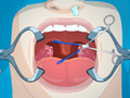 Operate Now: Tonsil Surgery online game
