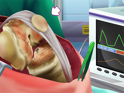 Knee Surgery Simulator online hra